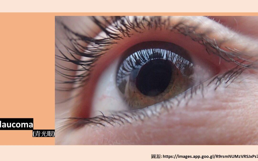 青光眼 (Glaucoma)