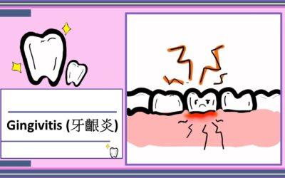 牙齦炎 (Gingivitis)