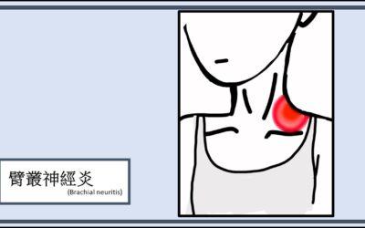 臂叢神經痛(Brachial Neuralgia)